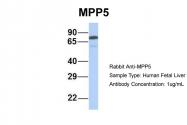ARP42915_P050 - MPP5