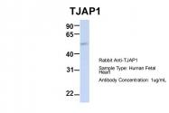 ARP42925_P050 - TJAP1
