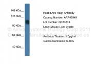 ARP42949_P050 - RAG1 / RNF74
