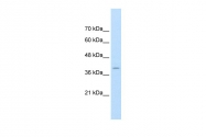 ARP43027_T100 - FKBP6 / FKBP36
