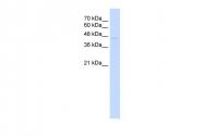ARP43450_P050 - TRIM59 / TSBF1 / RNF104