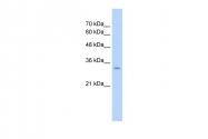 ARP43562_T100 - Glutaminase liver isoform