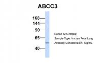 ARP43645_P050 - ABCC3 / CMOAT2 / MRP3