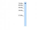 ARP43649_T100 - CD338 / ABCG2 / BCRP1