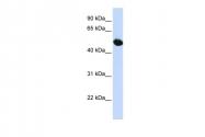 ARP43757_P050 - SLC2A9 / GLUT9