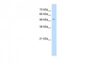ARP43845_P050 - SLC18A2 / VMAT2