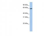 ARP43864_P050 - SLC13A2 / NADC1