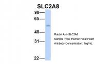 ARP43951_P050 - GLUT8 / SLC2A8