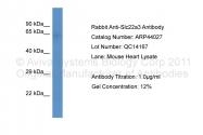 ARP44027_P050 - SLC22A3 / OCT3