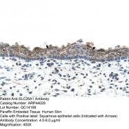 ARP44028_P050 - SLC26A1 / SAT1