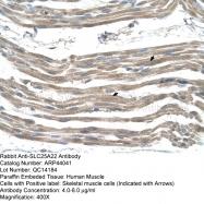 ARP44041_T100 - SLC25A22 / GC1