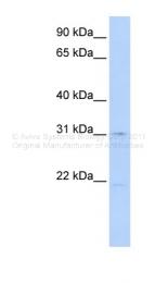 ARP44045_P050 - SLC25A21 / ODC