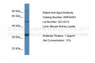 ARP44261_P050 - Delta-sarcoglycan