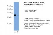 ARP44268_T100 - TGFBI / BIGH3