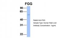 ARP44299_P050 - Fibrinogen gamma chain