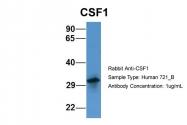 ARP44331_P050 - M-CSF / CSF-1