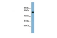 ARP44501_P050 - GPNMB / HGFIN