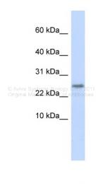 ARP44570_P050 - Cystatin 9