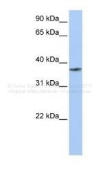 ARP44707_P050 - TMCC1