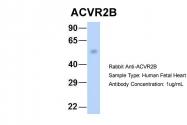 ARP45041_P050 - Activin receptor type 2B (ACVR2B)