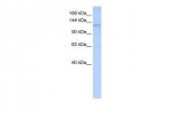 ARP45198_P050 - Desmoglein-2