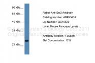 ARP45431_P050 - SSR2 / TRAPB