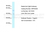 ARP45448_P050 - TGF-beta-3 (TGFB3)