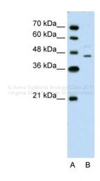 ARP45620_T100 - Steroidogenic factor 1