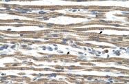 ARP45673_T100 - Arginase-1