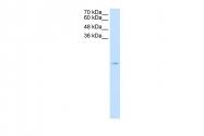 ARP45752_T100 - Superoxide Dismutase 1 / SOD1