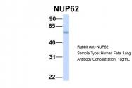 ARP46179_P050 - NUP62