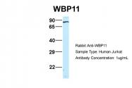 ARP46241_P050 - WBP11