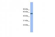 ARP46382_P050 - CD218a / IL18R1