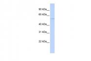 ARP46387_P050 - Epsilon-sarcoglycan / SGCE