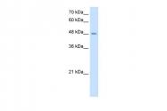 ARP46418_T100 - TMPRSS11D
