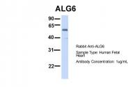 ARP46927_P050 - ALG6