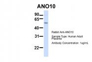 ARP47389_P050 - ANO10 / TMEM16K
