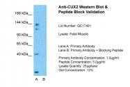 ARP47629_P050 - CUX2 / CUTL2