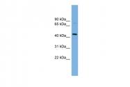 ARP47820_P050 - CD112 / Nectin 2