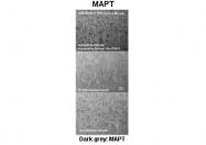 ARP48103_P050 - MAPT / TAU