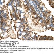 ARP48141_T100 - Phosphoglycerate kinase 1 (PGK1)