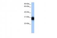 ARP48144_P050 - Triosephosphate isomerase (TPI1)