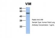 ARP48226_P050 - Vimentin