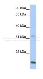 ARP48227_P050 - Telethonin / TCAP