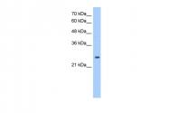 ARP48267_T100 - Peroxiredoxin-6 / PRDX6