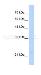ARP48418_T100 - NUDT16L1 / SDOS