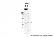 ARP48454_P050 - Peroxiredoxin-1 / PRDX1