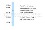 ARP48479_P050 - TAT (Tyrosine aminotransferase)