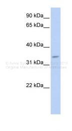 ARP49696_P050 - Tenomodulin (TNMD)