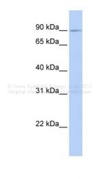 ARP49703_P050 - Xylosyltransferase 2 / XYLT2